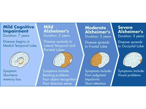 A next-generation approach to Alzheimer's treatment graph